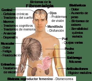 la fibromialgia y la incapacidad permanente