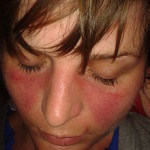 El lupus y la incapacidad permanente