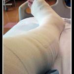 ¿Qué son las lesiones permanentes no invalidantes?