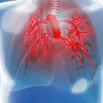 Incapacidad permanente e hipertensión pulmonar crónica
